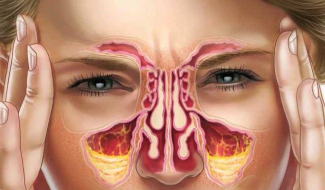grafika twarzy kobiety trapionej bólem w przekroju pokazując zatoki