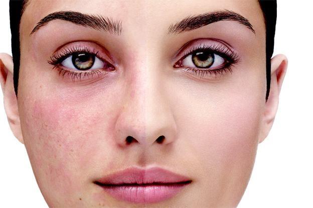 trądzik różowaty, zbliżenie na twarz kobiety w połowie objętej trądzikiem